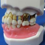 歯周病欠損モデル
