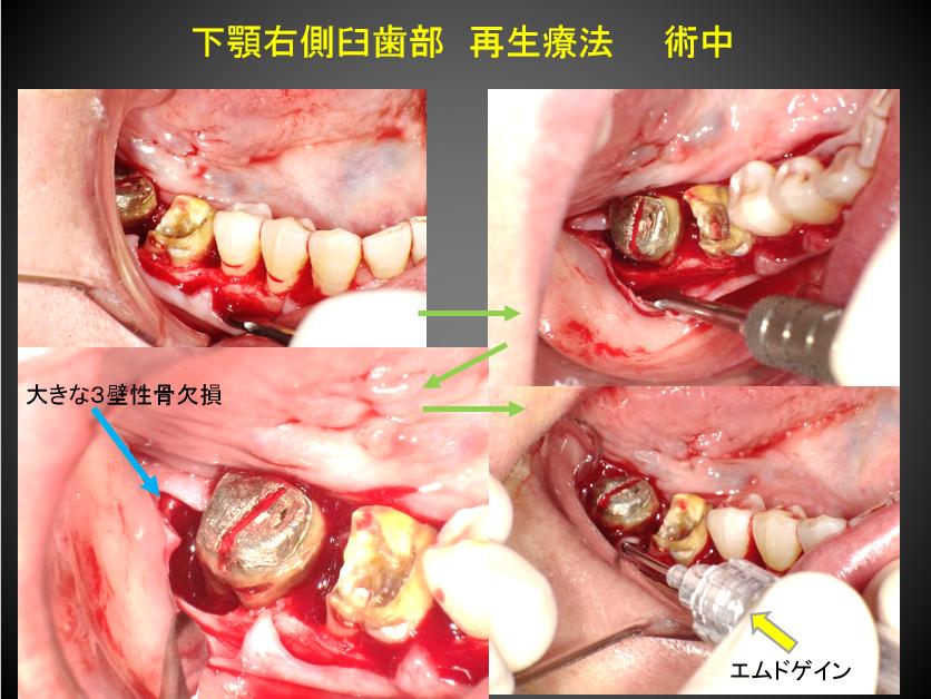 下顎臼歯再生療法術中