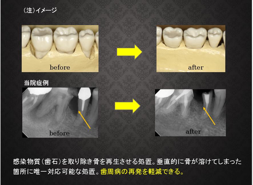 歯槽骨欠損モデルとレントゲン写真
