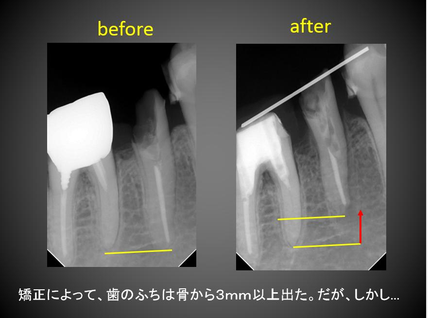 X線写真での延出状態
