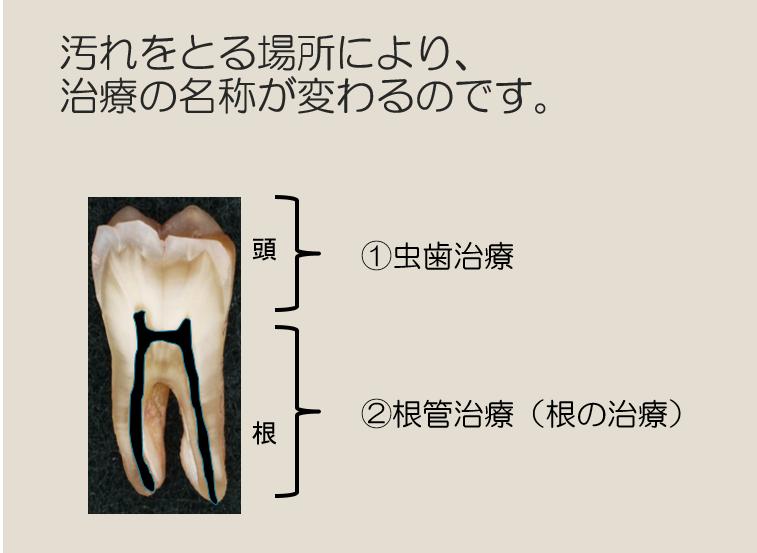 大臼歯解剖説明図