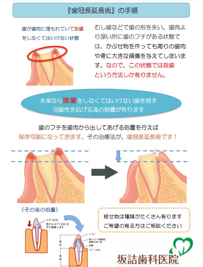 APF歯冠長延長術手順