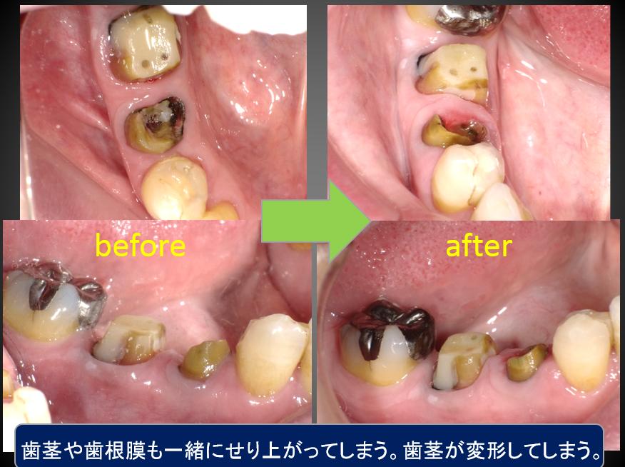 歯の延出状態写真