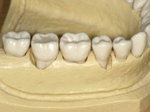 歯周再生療法欠損模型