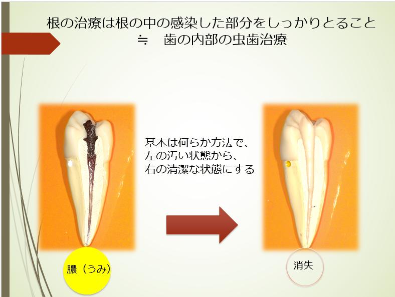歯根端切除説明図1