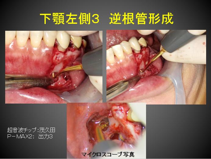 歯根端逆根充