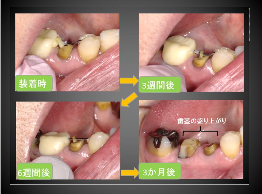 矯正力で歯の動かす