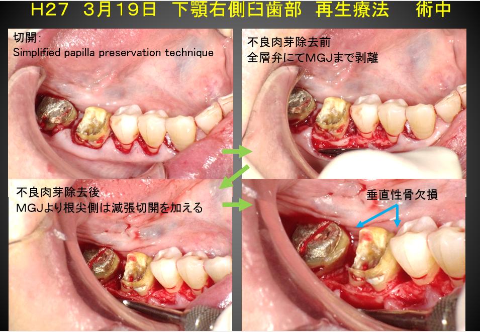 下顎臼歯再生療法