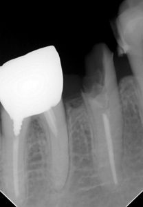 APF予定歯X線写真